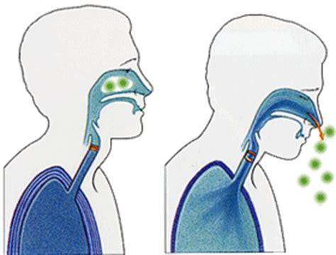 sneeze treatment sneezing symptoms causes diagnosis sneezing treatment