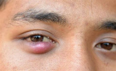 bump on s eyelid pimple on eyelid causes getting rid of small bumps inside lower and eyelids