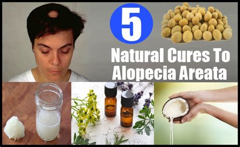 Top Treatment Best Cures For Alopecia Areata How To Cure