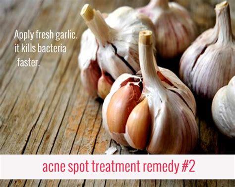 spot treatment home remedies 9 simple acne spot treatment home remedies skin care