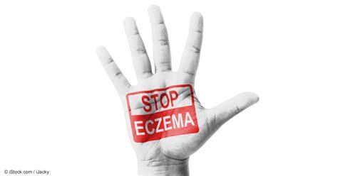 whole grains eczema options for flakey skin and eczema