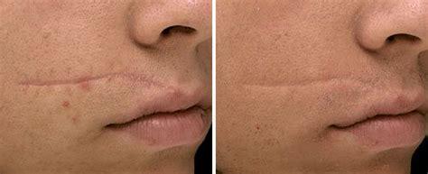 scar revision fotona