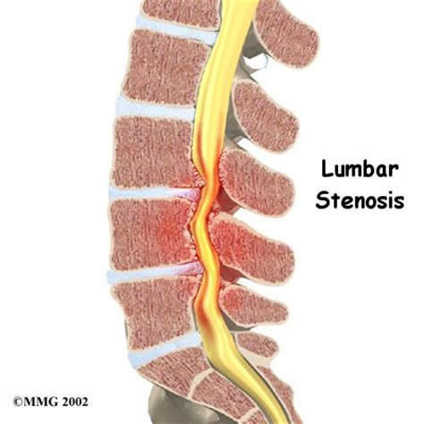 lumbar spinal stenosis orthogate