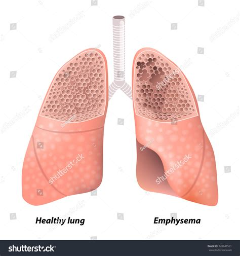 Healthy Section by Emphysema Chronic Obstructive Pulmonary Disease Diagram