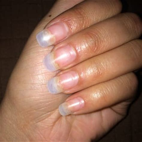 nails lifting from nail bed finger nails lifting pictures photos