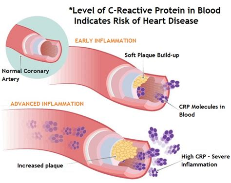 protein level in blood what is crp c reactive protein test