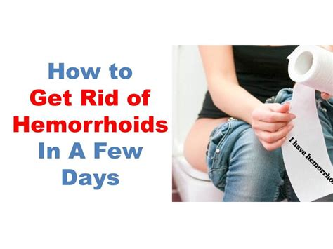 best hemorrhoids treatment how to get rid of hemorrhoids