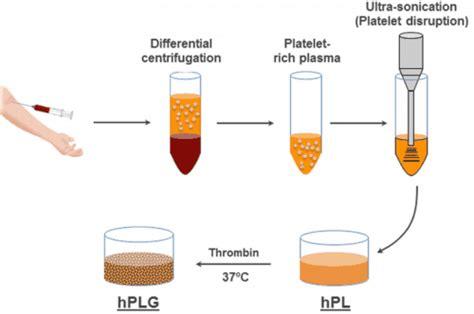 Serum Lyese preparaci 243 n ultras 243 nica suero en plaquetas