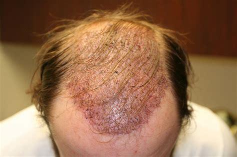 hair transplant problems hair transplant complaints dr alan bauman review plastic