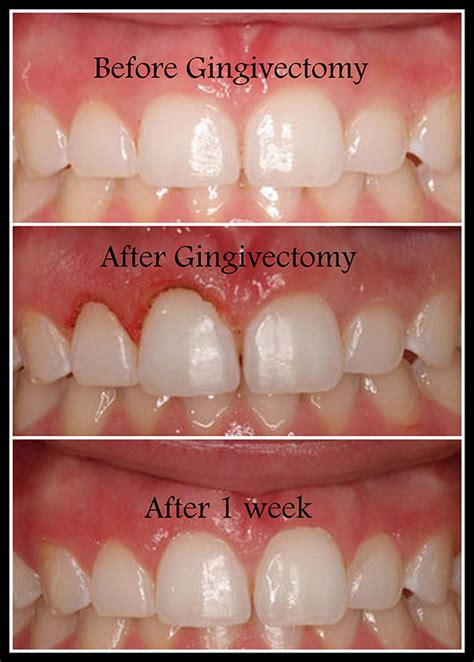 dental gingivectomy surgery treatment clinic delhi india