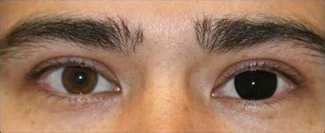 prosthetic contact lenses for light sensitivity congenital aniridia