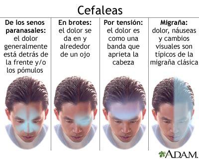 dolor de cuero cabelludo causas cefalea tensional medlineplus enciclopedia m 233 dica