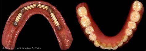 protesi mobile su impianti impianti implantologia ceramica titane edentulia zygoma