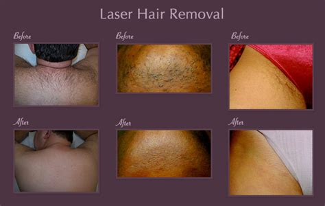 brazilian hair removal pictures laser hair removal