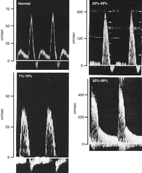 pattern classification ultrasound ultrasound assessment of lower extremity arteries