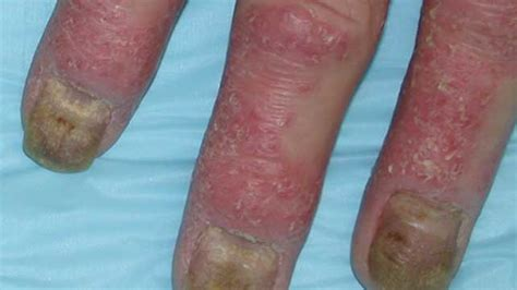 scalp psoriasis the psoriasis and psoriatic arthritis nail psoriasis pictures symptoms and treatments