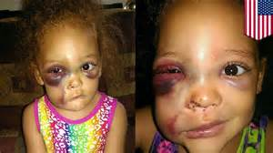 Bullied mississippi girl avalynn harris denied justice as school blames injuries on accident