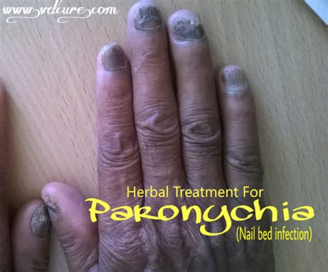 nail bed infection paronychia nail bed infection causes symptoms style change home remedies