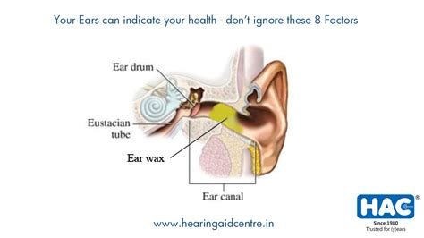 ear wax color ear wax of a white color archives hearing aid centre