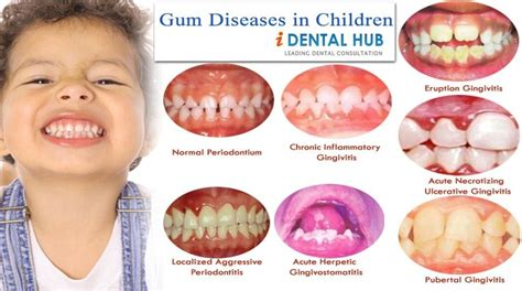 gum and periodontal diseases can occur in children