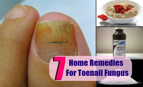 home remedies for foot fungus 7 toenail fungus home remedies treatments cures