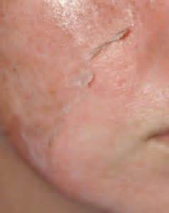 Textbook Of Chemical Peels Superficial 2nd Edition Ebook 19 best chemical peels images on tca chemical peel tca peel and skin treatments
