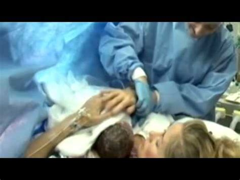 skin to skin after c section gentle c sections offers new moms a way to bond with their
