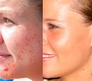 tanning l acne acne and stress treatment nature s cure acne pills side