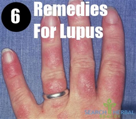 6 remedies for lupus treatments cure for lupus