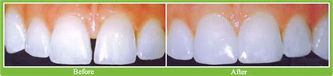 dental bonding cost effective cosmetic treatment