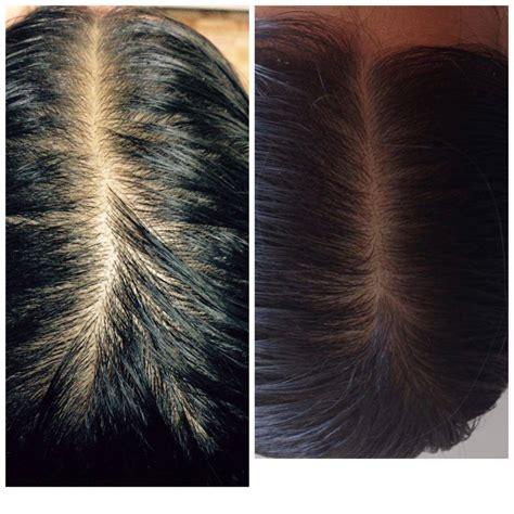 wild hair growth oil before and after before and after