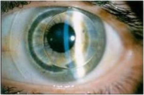 what are the most comfortable contacts rigid gas permeable new jersey cornea specialists new