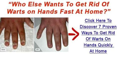 Way To Get Rid Of Planters Warts by How To Prevent Getting Warts 187 Fashion