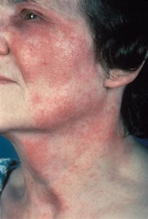 rashes lupus symptoms in women related keywords suggestions for lupus symptoms in women