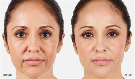 hairstyles for nasalfabial folds nasolabial folds before and after juvederm maryland dr