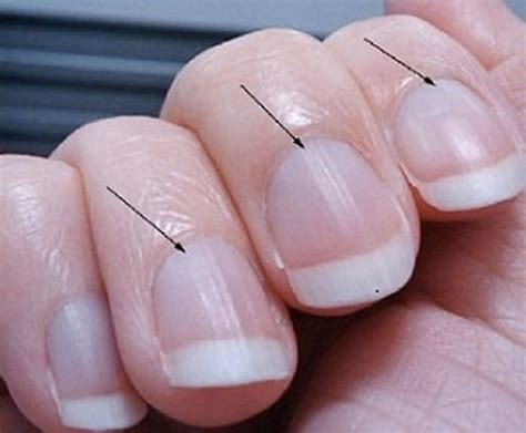 blue nail beds life saving warnings your nails are sending how do it info
