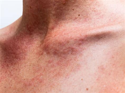 alergias a la piel alergias alimentarias