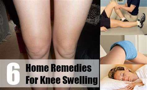 6 home remedies for knee swelling treat knee swelling