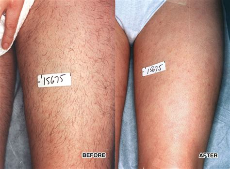 ipl hair removal clinic ipl hair removal le corte beauty clinic