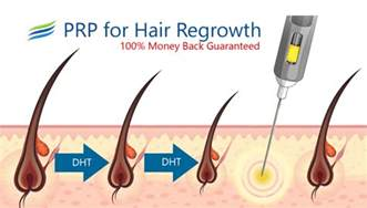 does prp treat hair loss caused by dht prp for hair loss