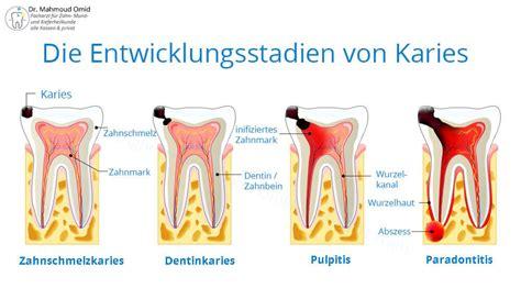 wann 1 zahn karies kariesbehandlung zahnarzt wien dr mahmoud