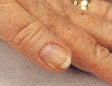 split nail onychoschizia encyclopedia nails magazine