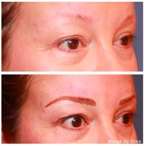 tattoo eyebrows after chemo eyebrows for chemotherapy patients in newport beach