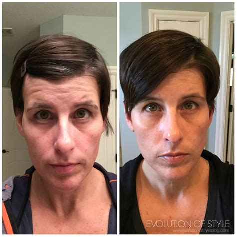 2018 hot and flashy an honest review of rodan fields skin care evolution of