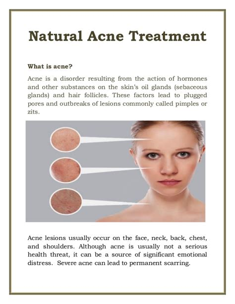 Best At Home Acne Treatment by Acne Treatment