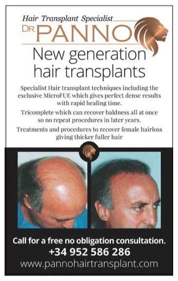 new hair replacement technology anti alopecia clinicatrasplantes capilares marbella