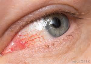 Conjunctivitis Blindness Eye Infections Ocular Infections