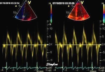 ecodoppler vasi epiaortici come si esegue ecocolordoppler cos 232 come si esegue e a cosa serve
