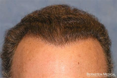 fienes hair transplant hair transplant repair milwaukee hair restoration long