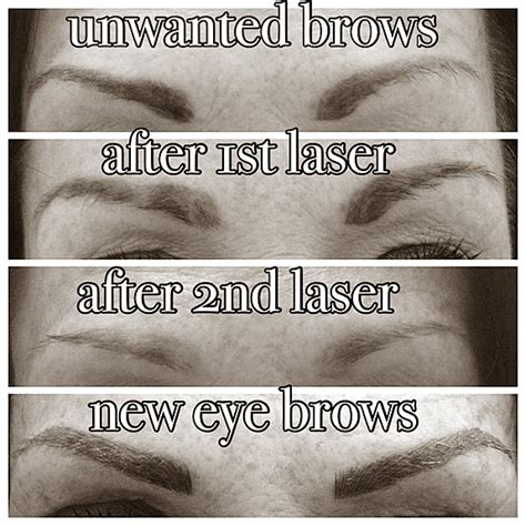 eyebrows tattoo removal laser eye brow removal kidderminster